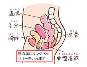 リング挿入図